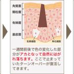 シミケア1